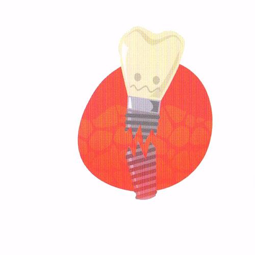 عوارض ایمپلنت دندانی